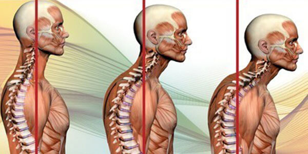 postura e ipercifosi fitnesspro