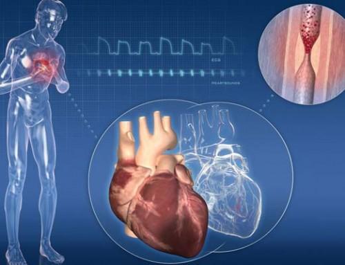 Allenamento e cardiopatia ischemica